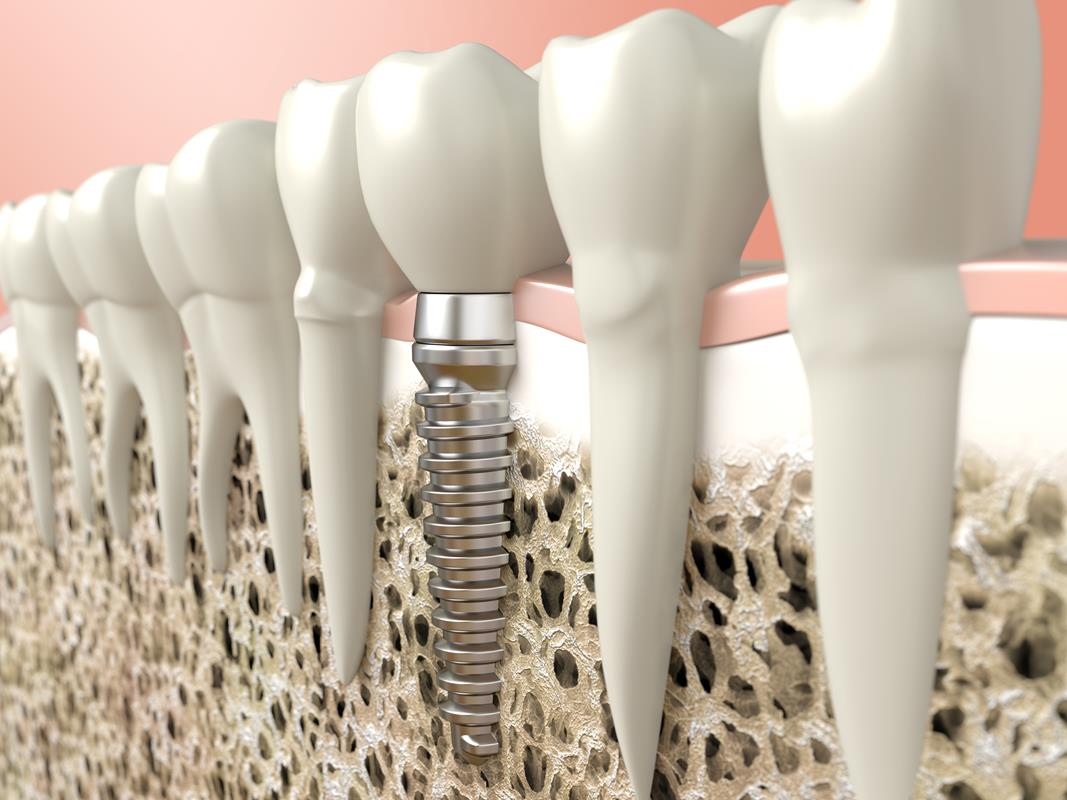 Dental Implants  Charlotte, NC