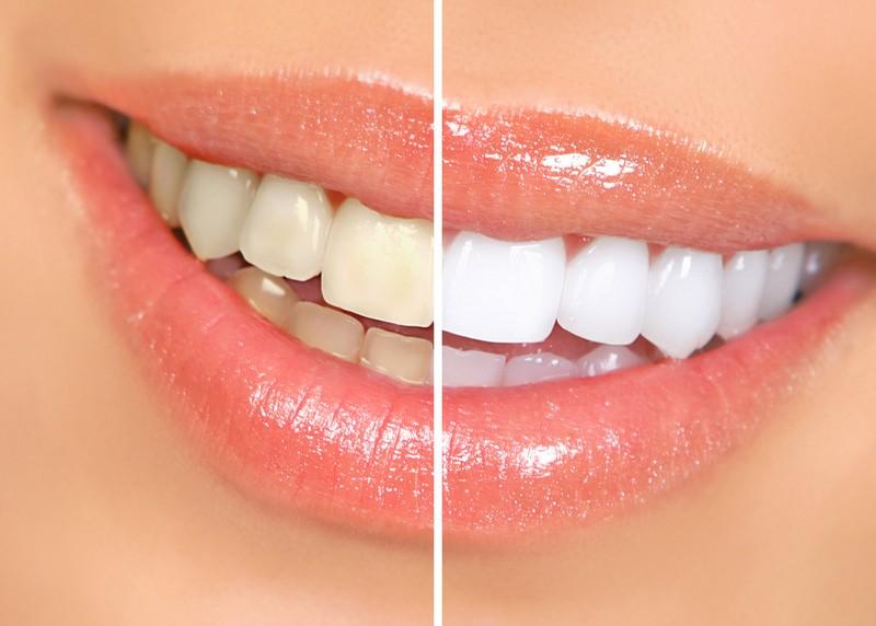 Teeth Whitening  Charlotte, NC